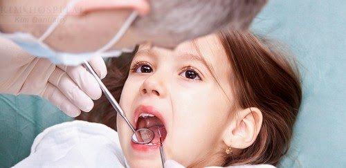 Bệnh răng miệng ở trẻ khá phổ biến