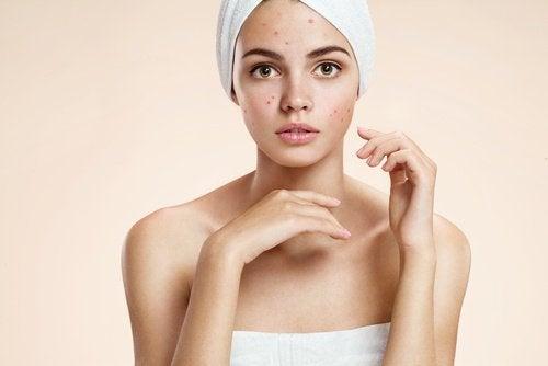 Βήματα για το δέρμα με ακμή με κανέλα και λεμόνι