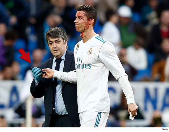 cristiano-ronaldo-checks-bloody-face-with-phone-after-head-injury.jpg