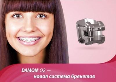 Брекеты Damon Q2 для коррекции прикуса