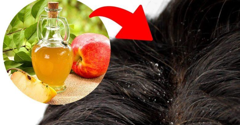 خل التفاح لعلاج قشرة الرأس