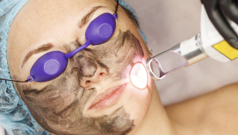 علاج الوجه بالليزر الكربوني