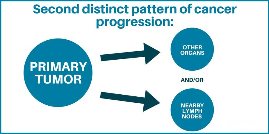 Lymph node graphic 2