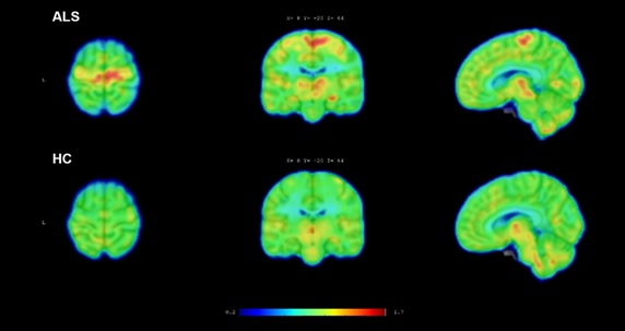 ALS imaging