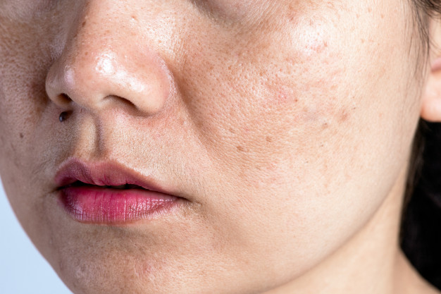 clogged pores treatment, causes of clogged pores, how to get rid of clogged pores,clogged pores on face,clogged pores on nose,clogged pores removal,how to unclog pores on nose, effective ways to clean clogged pores