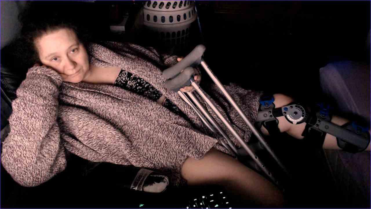 Broken Leg in Recovery