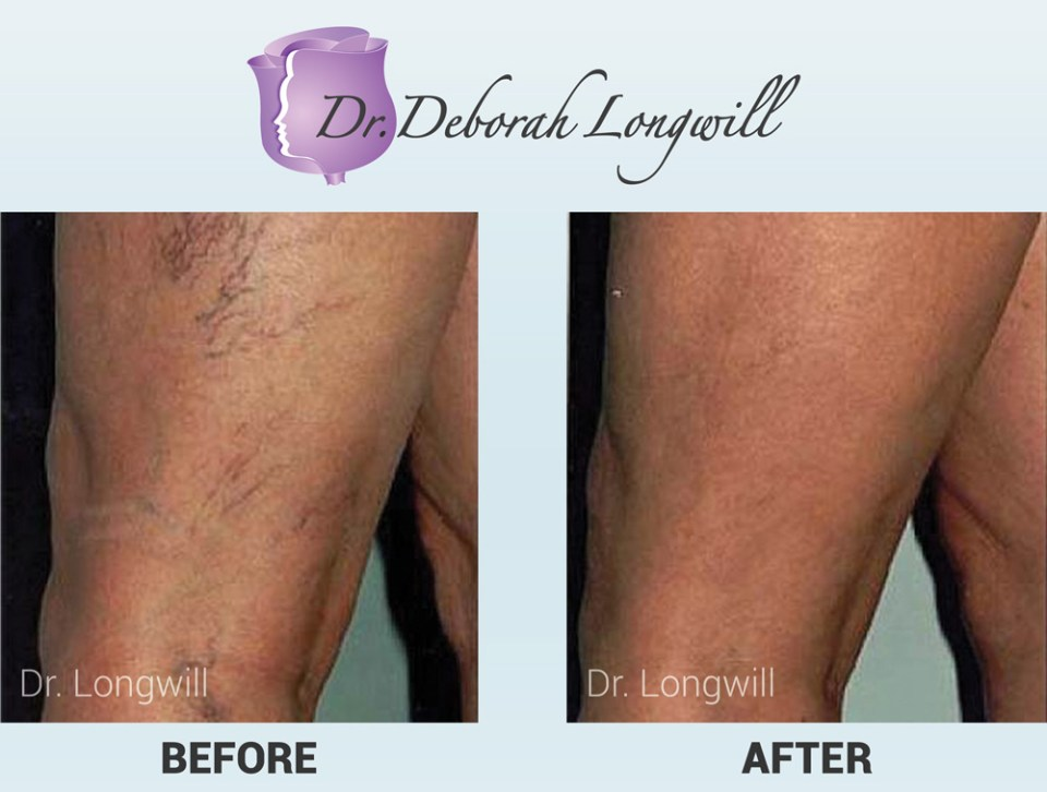 Before-After-Sclerotherapy