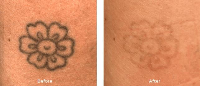 Miami Center For Dermatology Cosmetic Dermatology Laser Tattoo