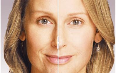 Juvederm Dermatology Treatment