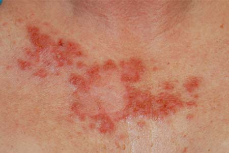 Non Melanoma Skin Cancer Treatment