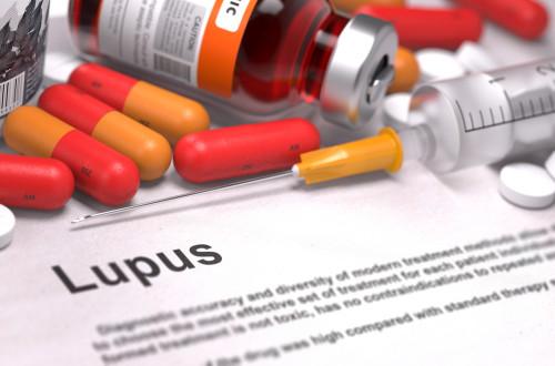 Collagen Vascular Disease, Lupus Treatment