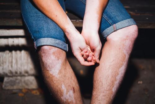 Vitiligo, Loss of Skin Color
