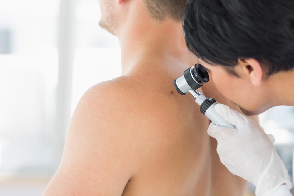 Skin Cancer Doctor in Miami