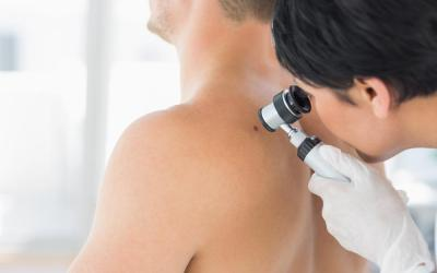 Skin Cancer Doctor in Miami