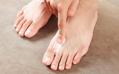 Athletes Foot Treatment