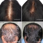 HairMax LaserBand 82. Fastest laser hair loss treatment, as little as 903
