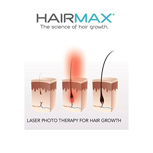HairMax Ultima 9 LaserComb. Stimulates Hair Growth, Reverses Thinning, Regrows Denser, Fuller Hair. Targeted hair loss treatment. Light, Portable, FDA Cleared6
