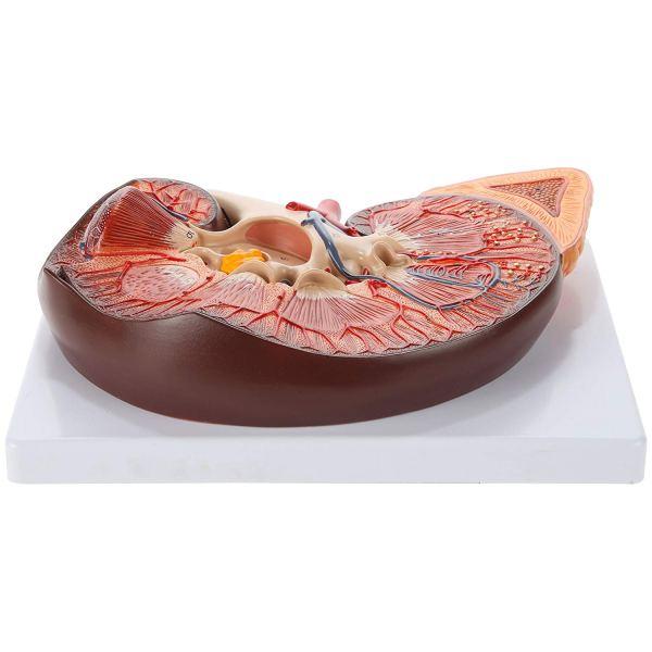 Axis Scientific Human Kidney Model5