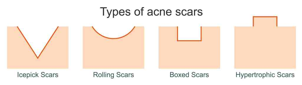 A diagram describing the different types of acne scars. There are three types of atrophic acne scars, as well as hypertrophic acne scars.