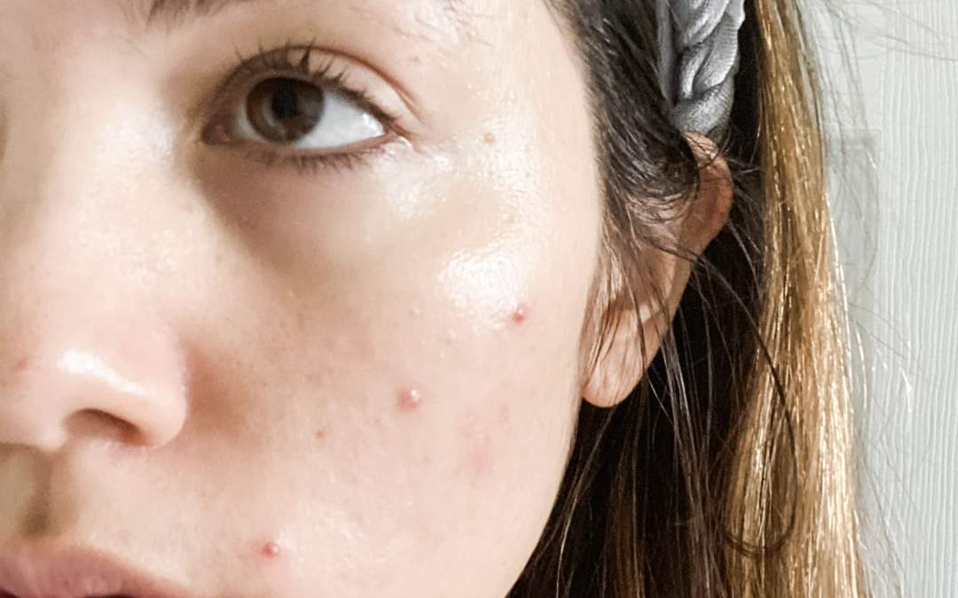 Pimple Keeps Coming Back After Popping? Here's 4 Easy Fixes