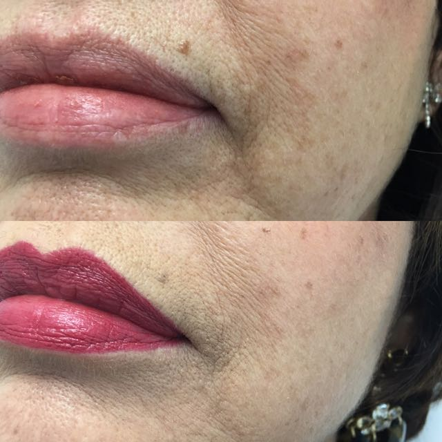 My lips Before and After Danielle Smith injected them with VOLBELLA