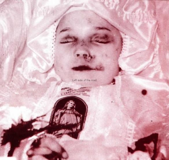 Child victim of Plastic Bullets