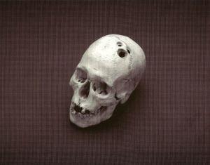 La première chirurgie du cerveau? Ancienne Mésopotamie -Voici un crâne avec trois trous percés . Ces trous sont le résultat d'une intervention chirurgicale réalisée par les anciens médecins sumériens. Cet individu est soupçonné d'avoir survécu à la chirurgie, car l'os montre des signes de guérison.