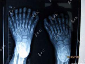 Radiographie des pieds.