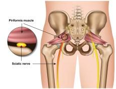 Sciatica (Piriformis Syndrome)