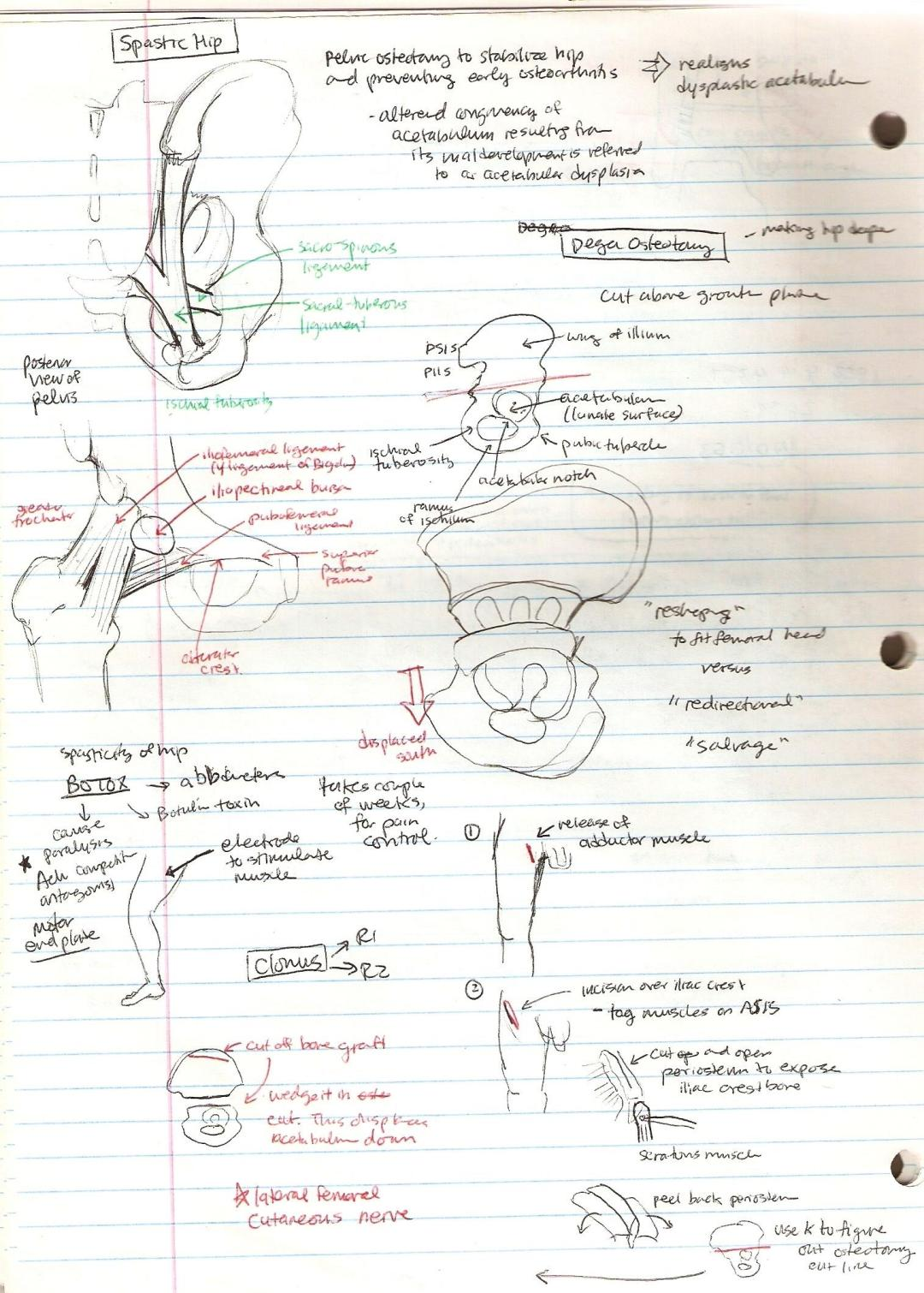 Michiko Maruyama Orthopedic Rotation Dega Osteotomy Diagram