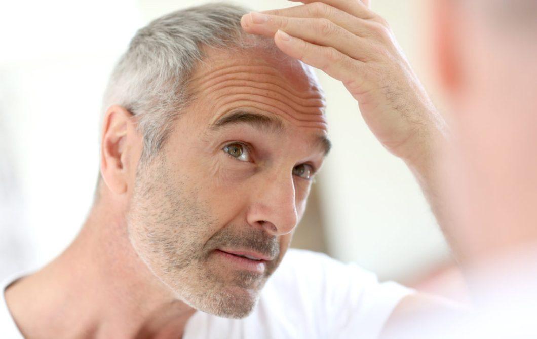 Mit Dem Dermaroller Haarausfall Stoppen Haarwachtum Anregen So Gehts