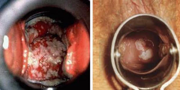 сайта лечения кандидозного вагинита мнительные больно нравственные