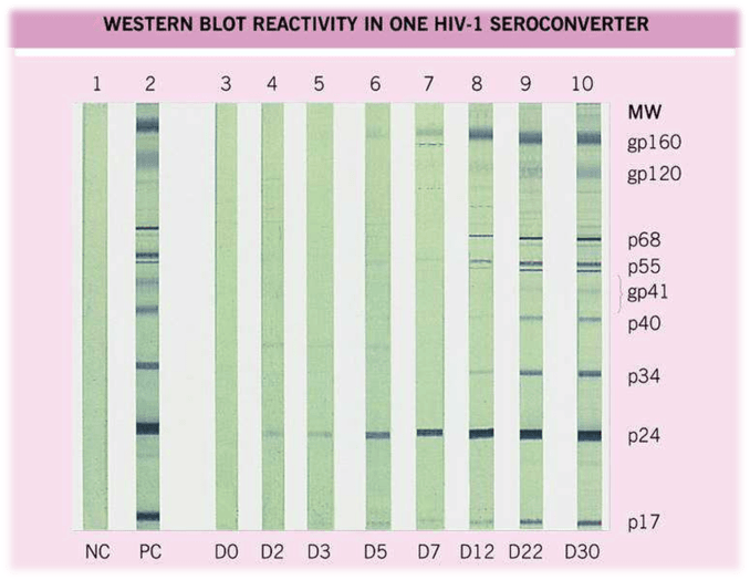 Western Blot Test for HIV diagnosis