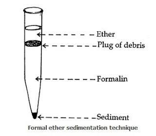 Formal Ether Sedimentation technique for the concentration of stool