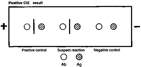 Counterimmunoelectrophoresis