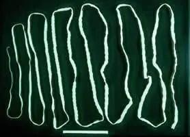 taenia saginata beef tapeworm