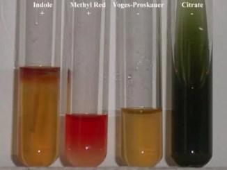 IMViC Test results of Escherichia coli