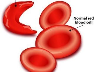 Normal Red Blood Cell and Sickle Shaped RBC