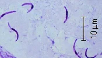 a test megtisztítása a Kansk klinika parazitáitól