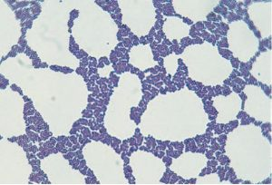 Staphylococcus in Gram Stain