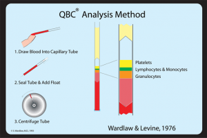 QBC analysis Method