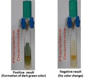 Phenylalanine deaminase test results