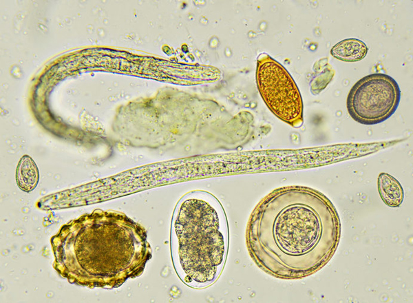 Laboratory Diagnosis of Intestinal Parasitic Infections