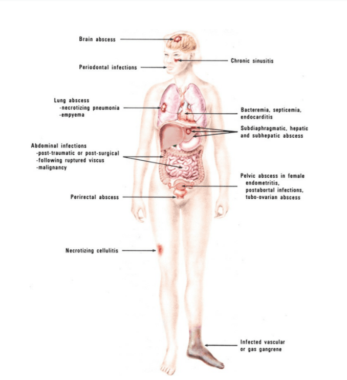 anaerobic infections