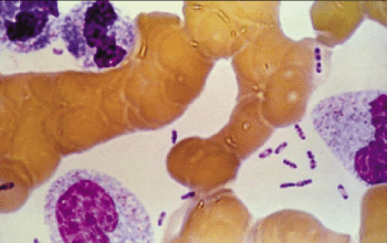Bipolar appearance of Yersinia pestis in Giemsa stain