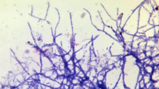 FIlamentous Nocardia