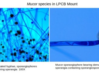Mucor in LPCB Mount