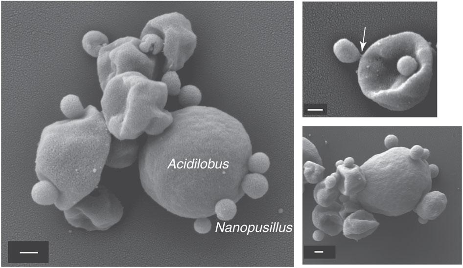 Electron microscopy captures the interaction between N. acidilobi and its host Acidilobus