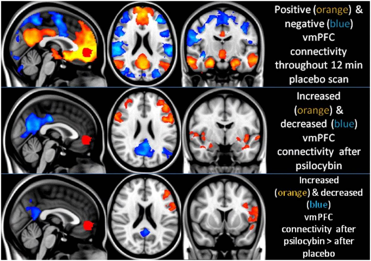 LSD and Magic Mushrooms Could Heal Damaged Brain Cells in People Suffering from Depression Study Shows