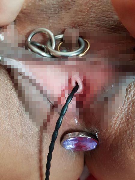 尿道プラグを女性の尿道に挿入している画像